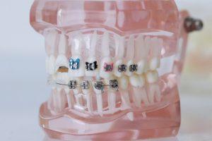 Interceptive Orthodontics in Lakewood CO